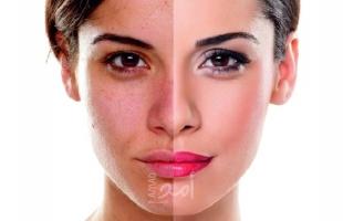 تعرفي على أنواع مختلفة من اضطرابات صبغة الجلد ونصائح لعلاجها