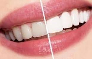 عادات خاطئة تؤثر على صحة أسنانك