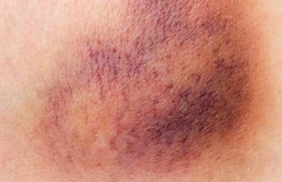 اضطراب الجلد الأزرق وأبرز أسبابه