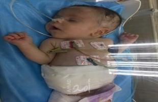 """عائلة الطفل """"أكرم المصري"""" بغزة تناشد عباس ووزيرة صحته لمساعدتها في علاج ابنها"""
