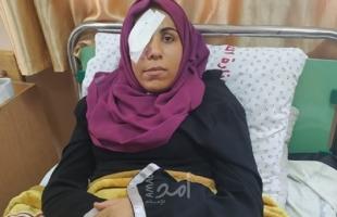 """بالفيديو.. الجريحة """"مي أبو رويضة"""" تروي تفاصيل فقدانها لـ""""عينها"""" برصاص قوات الاحتلال """"المطاطي"""" شرق البريج"""