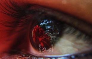 إعتام عدسة العين ومتى تحتاج التدخل الجراحي