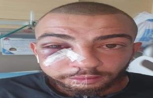 القدس: إصابة يوسف درويش بجروح وتمزق في شبكية عينه جراء اعتداء قوات الاحتلال عليه