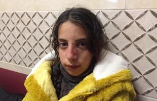 محدث .. نابلس: مستوطنون يصيبون طفلة بجروح ويحاولون اختطافها - فيديو