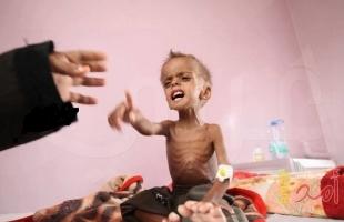 الأمم المتحدة: إنعدام الأمن الغذائي في اليمن أسوأ مجاعة شهدها العالم