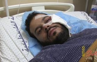 """بعد إجراء فحوصات طبية في الأردن.. الصحفي """"عطية درويش"""" يفقد عينه اليسرى كلياً"""