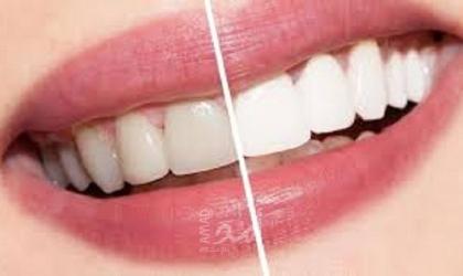 طرق طبيعية غير ضارة لتبييض أسنانِك!