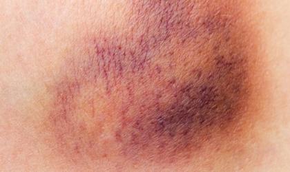 نزيف الجلد قد يكون بسبب كدمه أو علامه لمرض خطير