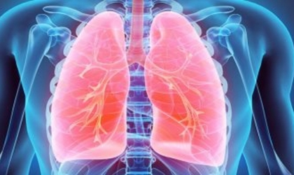 ما هو سرطان الرئة ذو الخلايا الصغيرة .. تعرف