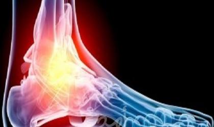 لماذا يطلب طبيبك أشعة على القدم؟