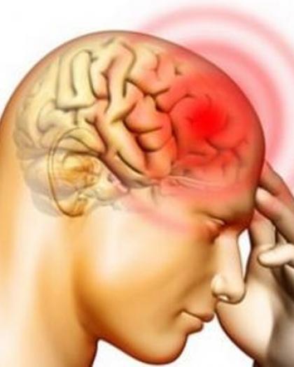 علامات تدل على الإصابة بنزيف المخ
