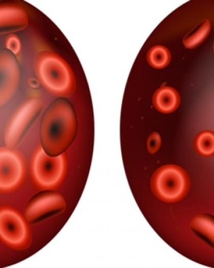 4 عناصر غذائية تزيد عدد خلايا الدم الحمراء
